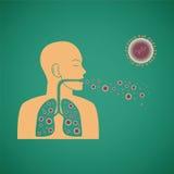 Concepto del vector de virus patógeno respiratorio del hombre Imagenes de archivo