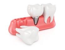 Concepto dental de la implantación Fotografía de archivo libre de regalías