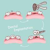 Concepto dental de la implantación del diente de la historieta Fotos de archivo libres de regalías