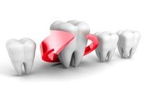 Concepto dental de la salud Flecha roja alrededor del diente Foto de archivo