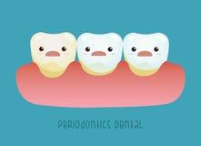 Concepto dental del Periodontics Imagen de archivo libre de regalías