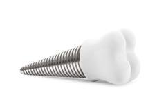 Concepto dental. Implante del diente Fotografía de archivo