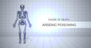 Concepto forense humano de la animación de la autopsia - causa de la muerte - envenenamiento arsénico almacen de metraje de vídeo
