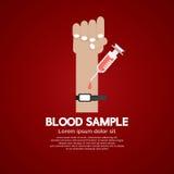 Concepto médico de la muestra de sangre Fotografía de archivo