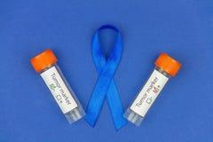 Concepto Oncological de la enfermedad de intestino fotos de archivo libres de regalías