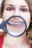 Conceptos dentales de la salud y de la higiene Hembra caucásica que demuestra los dientes Fotografía de archivo libre de regalías