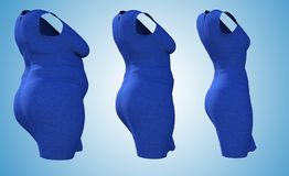 Overweight obese female dress outfit vs slim fit healthy body. Conceptual fat overweight obese female dress outfit vs slim fit healthy body after weight loss or Royalty Free Stock Image