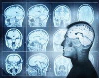 Conceptual image of a man from side profile showing brain activ stock photo