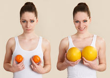Conceptual Image To Illustrate Breast Enlargement Surgery Stock Images