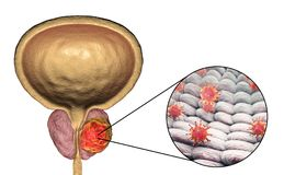 Conceptual image for viral ethiology of prostate cancer Royalty Free Stock Photography