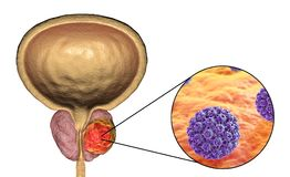 Conceptual image for viral ethiology of prostate cancer Stock Photo