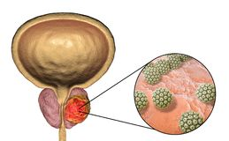 Conceptual image for viral ethiology of prostate cancer Stock Photos