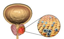 Conceptual image for viral ethiology of prostate cancer Stock Photography