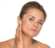 Concerned молодая женщина с метками пластической хирургии Стоковые Изображения RF
