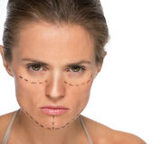 Concerned woman with plastic surgery marks. Portrait of concerned young woman with plastic surgery marks Stock Images