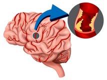 Concetto del coagulo di sangue nel cervello Immagine Stock