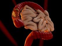Concetto del tumore del colon come illustrazione medica di un intestino crasso Fotografia Stock Libera da Diritti