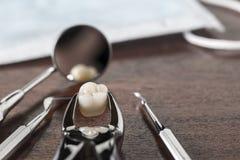 Concetto dell'estrazione del dente Fotografia Stock Libera da Diritti