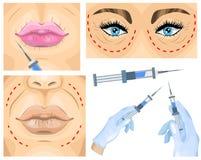 Concetto della chirurgia estetica trattamento facciale della grinza della donna royalty illustrazione gratis