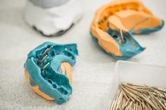 Concetto della protesi dentaria Immagine Stock