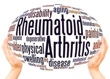 Concetto della sfera della mano della nuvola di parola di artrite reumatoide royalty illustrazione gratis