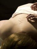 Concetto di agopuntura Fotografia Stock Libera da Diritti