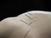 Concetto di agopuntura Fotografie Stock Libere da Diritti