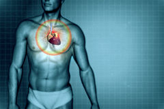 Concetto di attacco di cuore Immagine Stock Libera da Diritti