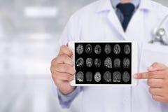 Concetto di malattia di Alzheimers, malattie degeneranti Parkin del cervello fotografie stock libere da diritti