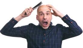 Concetto di perdita di capelli Uomo calvo scosso immagini stock