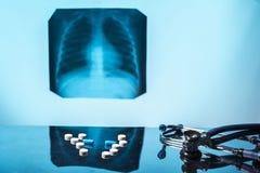 Concetto di trattamento di tubercolosi polmonare Raggi x medici dello stetoscopio delle pillole di natura morta immagine stock