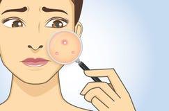 Conclusion de l'acné avec la loupe Image stock