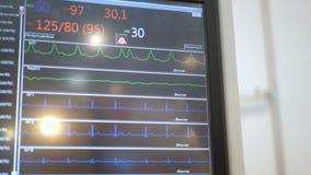 Condição paciente do ` s do monitor de Ecg na sala de operações, fim acima da pulsação do coração na tela, frequência cardíaca, p vídeos de arquivo