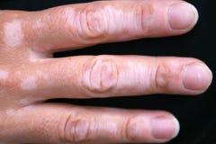 Condición de piel de Vitiligo Foto de archivo libre de regalías