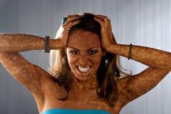 Condición de piel de Vitiligo fotos de archivo libres de regalías