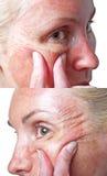 Condition de peau après ACIDE TRICHLORACÉTIQUE chimique d'écaillement. image stock