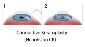 Conductive Keratoplasty eye surgery Royalty Free Stock Photo