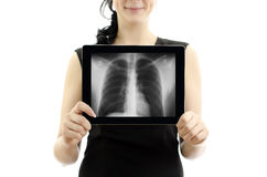 Conept: X-ray with lungs. Royalty Free Stock Photography