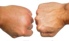 Confrontando le articolazioni gonfiate sulle mani maschii isolate su bianco immagini stock libere da diritti