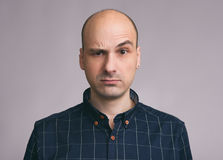 Confused Guy. Puzzled Young Bald Man Stock Photo