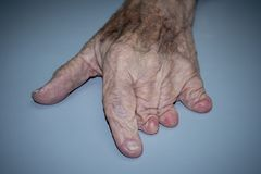 Congenital abnormality in left hand. A man displays boneless fingers with the exception of the thumb in his left hand due to a congenital abnormality stock images