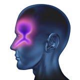 Congestione nasale Fotografia Stock