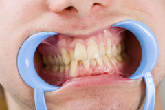 Congestioned teeth Royalty Free Stock Photo