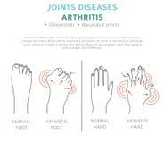 Congiunge le malattie Sintomi di artrite, insieme dell'icona di trattamento medico royalty illustrazione gratis