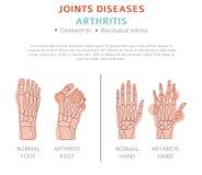 Congiunge le malattie Sintomi di artrite, insieme dell'icona di trattamento medico illustrazione di stock