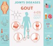 Congiunge le malattie Sintomi di gotta, insieme dell'icona di trattamento Info medico illustrazione vettoriale