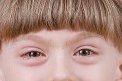 Congiuntivite - occhi allergici malati Immagine Stock Libera da Diritti