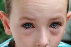 conjonctivite d'allergie Photo libre de droits