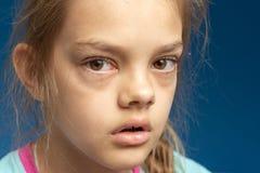 Conjonctivite devant une fille de dix ans image stock