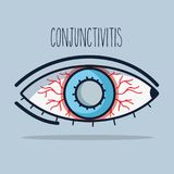 Conjunctivitis allergic inflammation of vision eye. Vector illustration Royalty Free Stock Photos